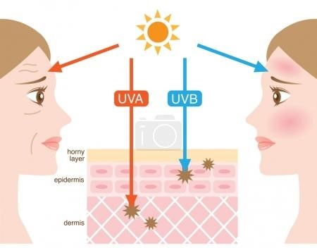 laser treatment for face side effects