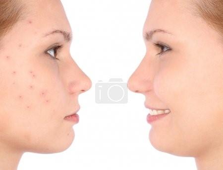 salicylic acid side effects salicylic acid benefits can salicylic acid cause acne is salicylic acid natural salicylic acid effect on skin